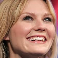kirsten dunst teeth